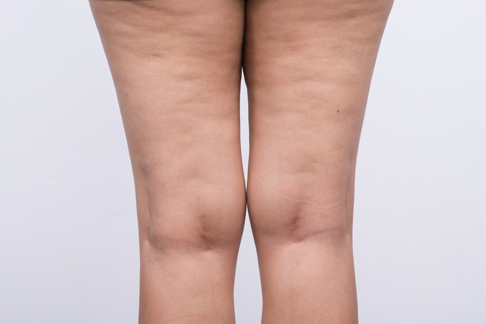 Tips When Cellulite Won't Go Away